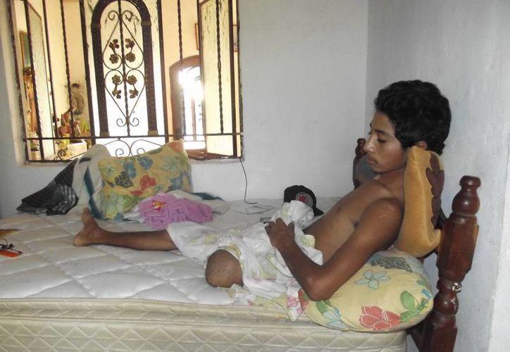 Arturo Serralta Palomo convalece en su casa, en el municipio de Dzan, Yucatán, de las heridas que le ocasionó un conductor ebrio que lo embistió cuando el joven iba en motocicleta. (SIPSE)