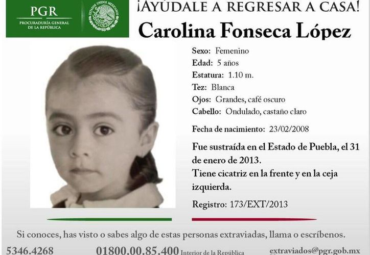 Carolina Fonseca López tiene una cicatriz que mide un centímetro de longitud en medio de las dos cejas, y una cicatriz arriba de la ceja izquierda. (twicsy.com)