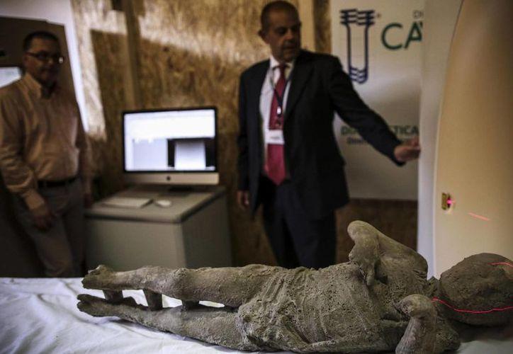 Una momia de Pompeya es examinada mediante una tommografía axial computarizada en Pompeya. (EFE)