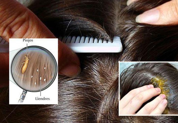 Se trata de un método de criogenización consistente en un casco con fomi y un cepillo que aplica pequeñas dosis de nitrógeno. (Contexto/Internet)