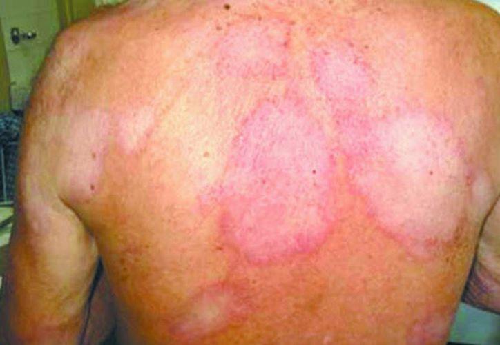 La lepra causa pérdida de sensibilidad porque afecta la piel y los nervios. (Archivo/agencias)