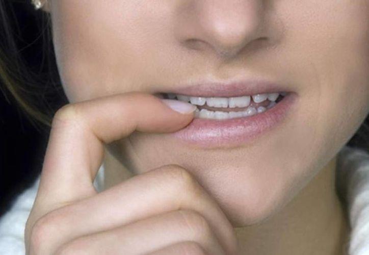 El movimiento de la mandíbula ocasiona que los dientes se desgasten e incluso se fracturen. (Foto de Contexto/Internet)