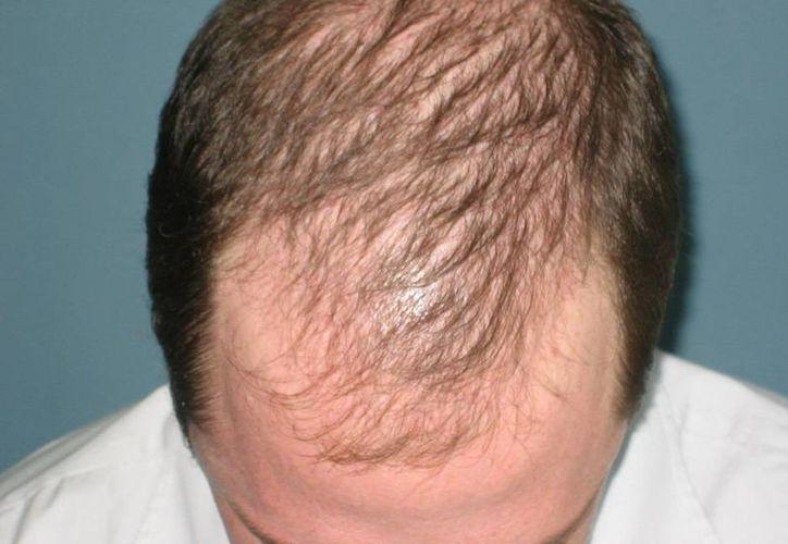 La droga ruxolitinib nunca había sido utilizada para la calvicie, pero mostró resultados alentadores. (medicalpress.es)