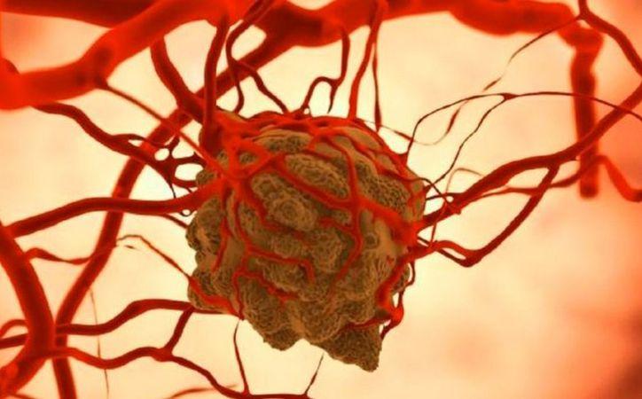 Algunos de los sitios más comunes de metástasis son el hueso, el hígado y el pulmón. (El Observador)