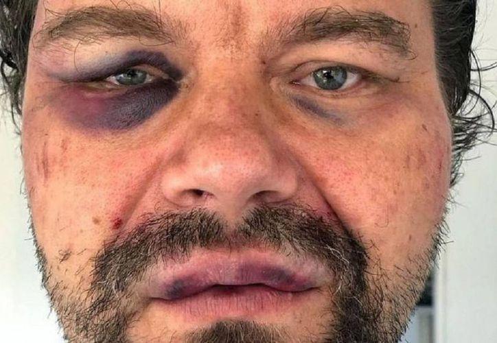 Periodista polaco acusa a la polícia venezolana de golpearlo (Foto: Twitter/@ElNacionalWeb)