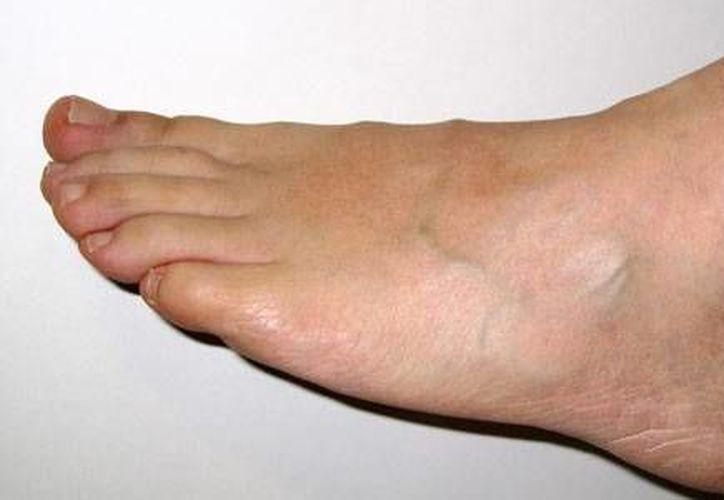 La diabetes y sus complicaciones, como la úlcera de pie diabético, son de las principales afecciones que sufren los yucatecos. (Milenio Novedades)