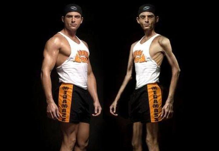 La buliminia y la anorexia afectan también a hombres en Yucatán. (SIPSE)