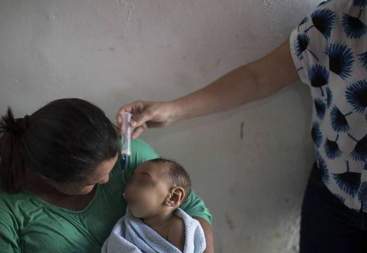 La microcefalia es un defecto congénito en donde el tamaño de la cabeza del bebé es más pequeño de lo esperado. (Imagen de archivo/ Associated Press)
