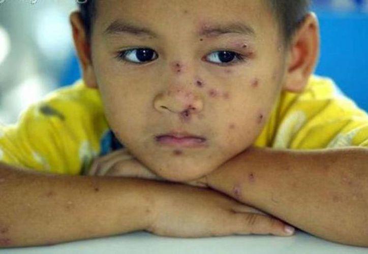 Al detectar los síntomas hay que aislar al infante para evitar contagios. (Milenio Novedades)