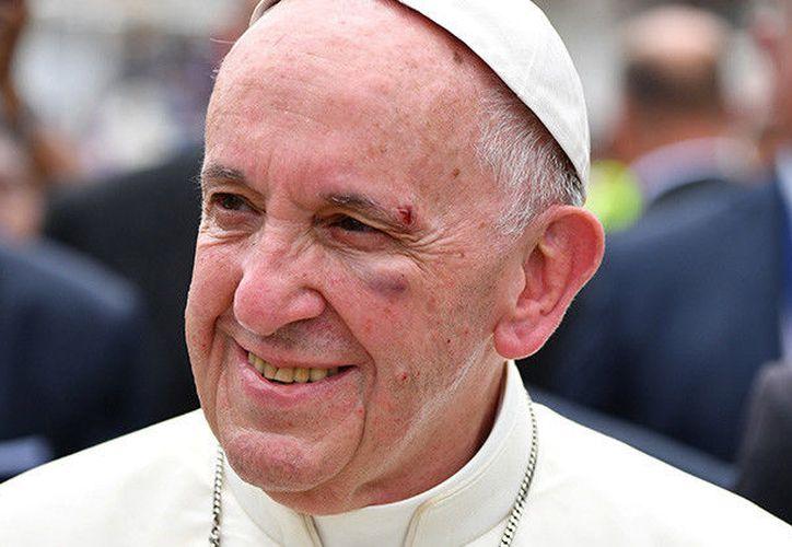 El Papa Francisco ha restado importancia al golpe que recibió durante su recorrido por Colombia en el papamóvil. (Reuters).