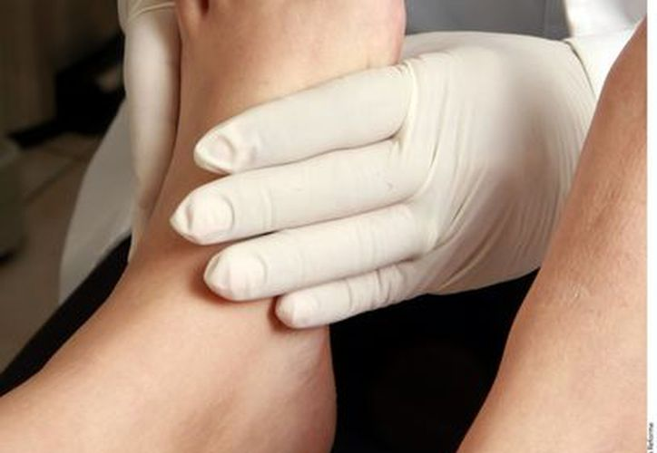 Muchos recurren a productos comerciales para aliviar padecimientos en los pies. (Reforma)
