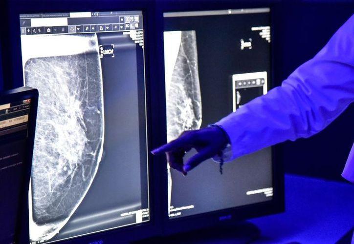 La mayoría de las terapias contra el cáncer son dirigidas a matar las células afectadas, y este se enfoca en detener su movimiento en el cuerpo. (Vanguardia MX)