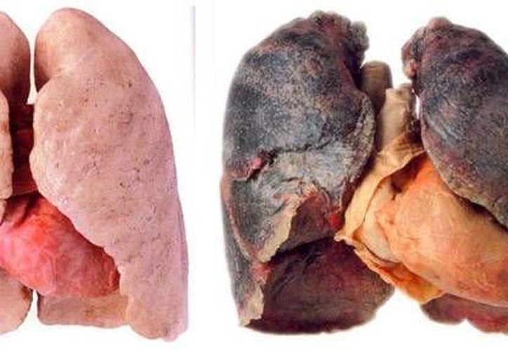 Diferencias entre pulmones con cáncer avanzado y sanos. (taringa.net/Contexto)