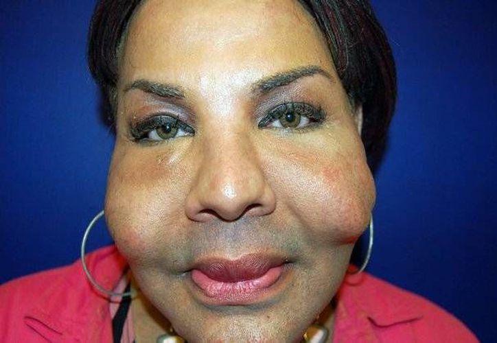 Rajinda Narinseich, con el rostro deformado a causa de intervenciones cosméticas ilegales. (Agencias)