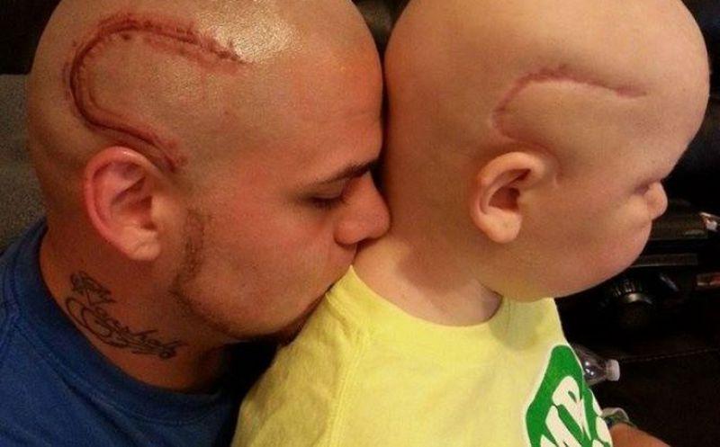 Se tatúa la cicatriz de su hijo; llora su muerte