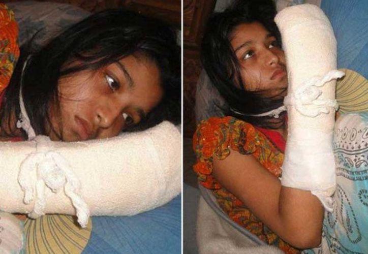 Hawa Akther sufrió al amputación de los dedos de su mano derecha por parte de su esposo, para evitar que continúe sus estudios universitarios. (Excélsior)
