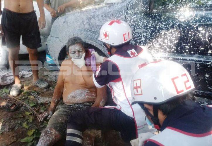 Conmocionado quedó el soldador lesionado en un taller de Tizimín. (SIPSE)