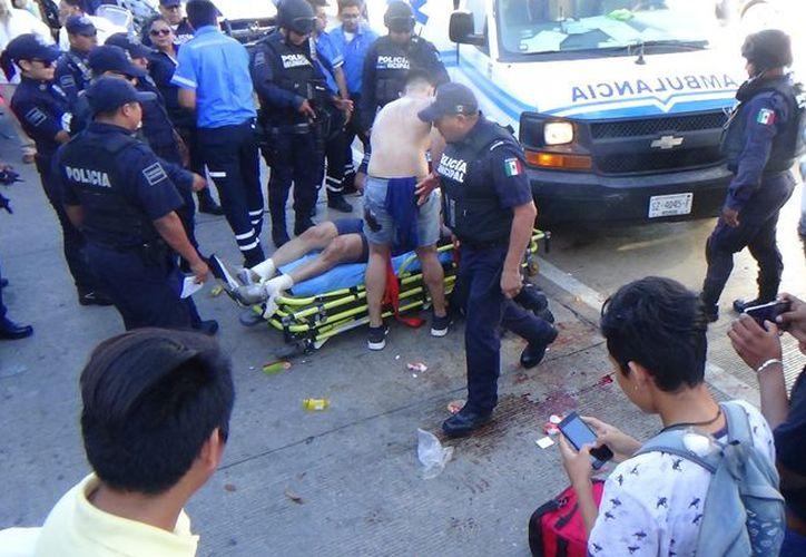 Fue atendido por paramédicos uno de los visitantes. (Daniel Pacheco/SIPSE)