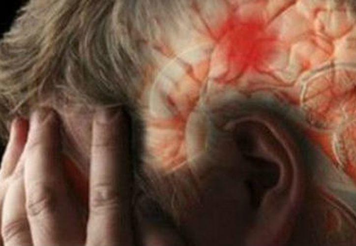 La depresión ¡está acabando con tu cerebro!