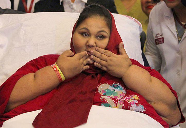 La mujer, de 37 años, no ha podido superar una serie de complicaciones de salud derivados de su sobrepeso. (RT)