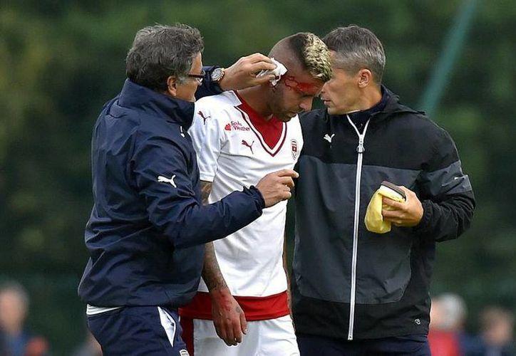 Jeremy Menez fue sometido a una cirugía para reimplantar su oreja, luego del accidente en pleno partido.(AP)