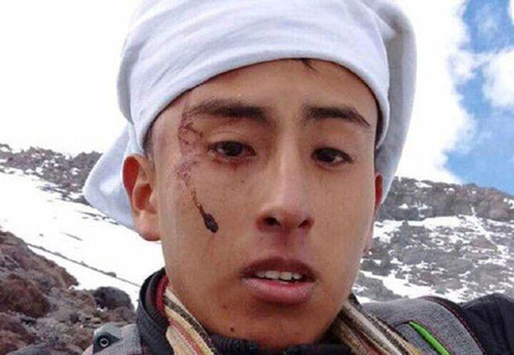 La caída le provocó lesiones en la cabeza y en las extremidades. (Milenio)
