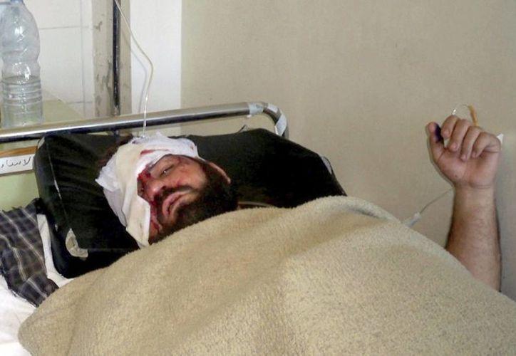 Fotografía facilitada por la agencia oficial siria de noticias (Sana) que muestra un ciudadano sirio herido. (EFE)