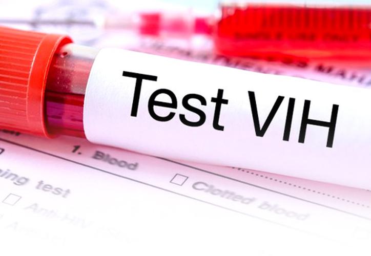 Para prevenir la transmisión, el virus debe ser suprimido a niveles indetectables. (Foto: Contexto/Internet)
