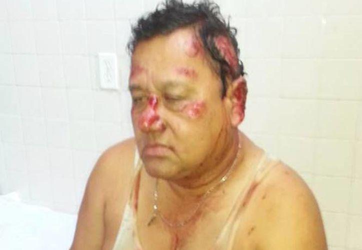 Está grave Ramón Olán, candidato del PT a la diputación local por el Distrito III de Cárdenas, Tabasco, ya que fue arrollado. (Fotos: excelsior.com.mx)
