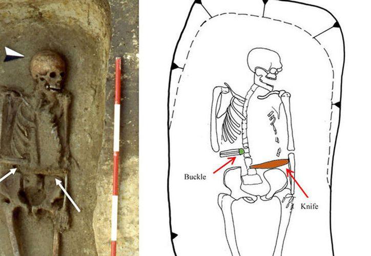 En el norte de Italia fue hallado el esqueleto de un hombre medieval manco. (Foto: Journal of Anthropological Sciences)
