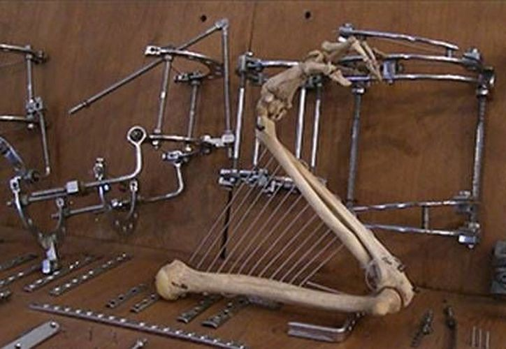 El esqueleto que el médico utilizó como materia prima para su obra fue un regalo de un conocido suyo profesor de anatomía. (actualidad.rt.com)