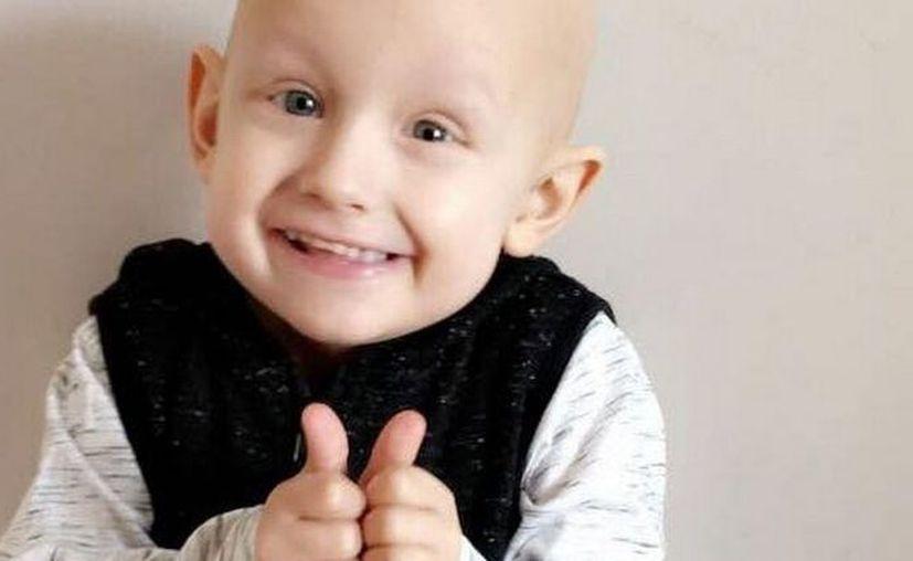 Charlie tenía un tumor cancerígeno muy raro que comienza en el hígado y que primordialmente afecta a los niños de tres años de edad. (Vanguardia MX)