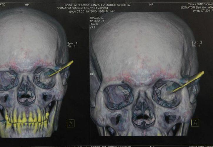 Jorge Alberto González Campos fue atendido en un hospital, donde nunca le dijeron que tenía el arma en el cráneo. (EFE)