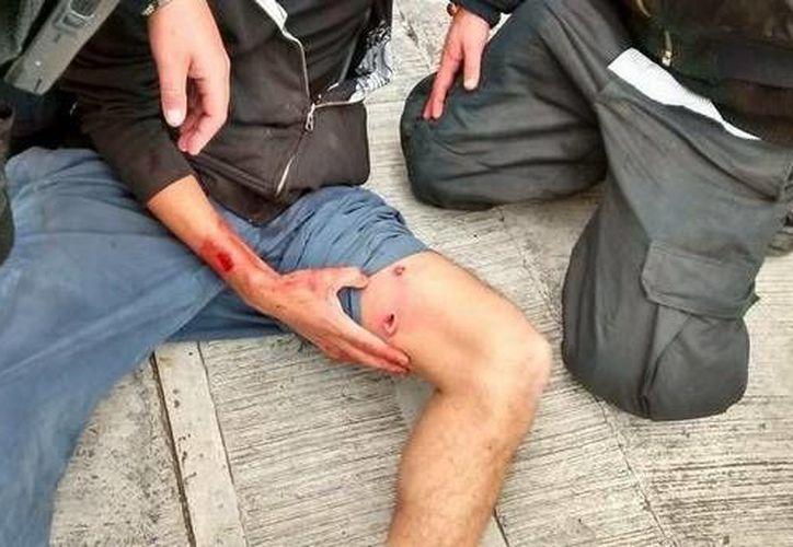 Este es uno de los estudiantes universitarios que recibió un disparo. (Imagen tomada del Facebook Raíces Libertarias)