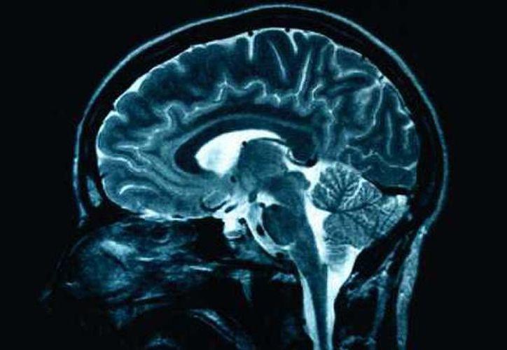 Los científicos analizaron muestras de ADN y escans de cerebros de más de mil 500 pacientes sanos de 14 años. (foto de contexto/juventud.psuv.org.ve)
