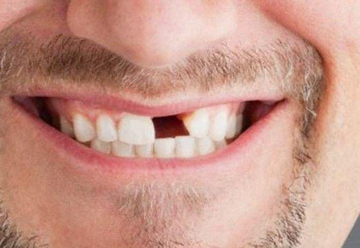 En promedio el primer diente extraído es entre los 15 y 18 años de edad para ambos sexos. (Contexto/Internet)