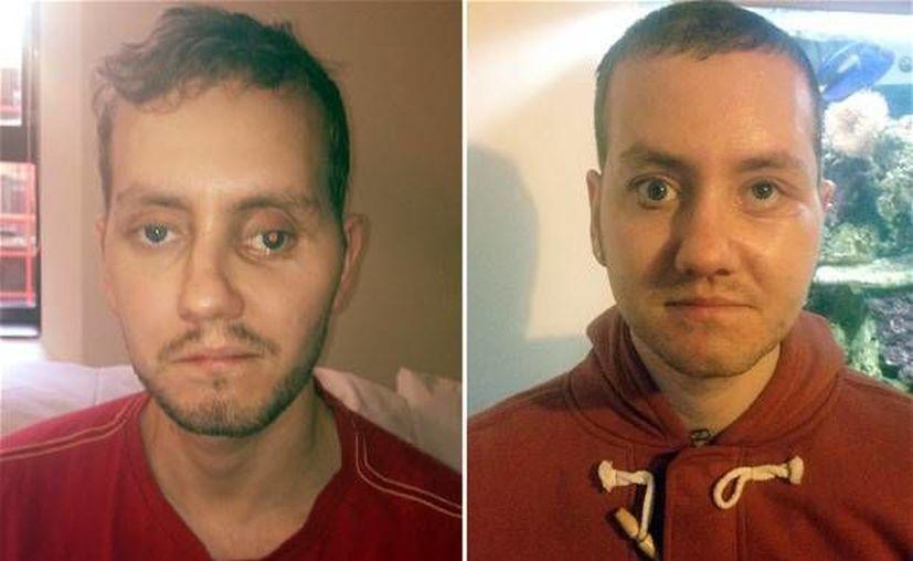 Stephen Power se dijo muy satisfecho con los resultados de la innovadora cirugía. (telegraph.co.uk)