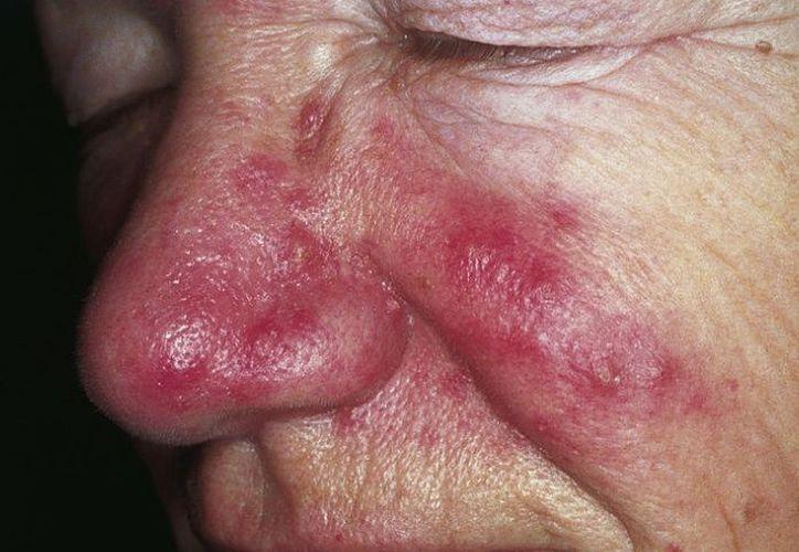 Pequeños vasos sanguíneos visibles en la superficie del rostro. (El Debate)