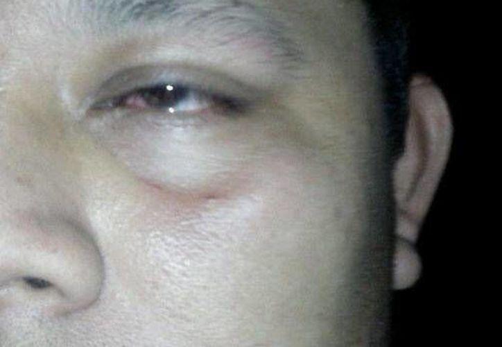 """""""Sin motivo alguno me golpeó en el ojo derecho"""", aseguró Jorge Antonio Lagos. (Redacción/SIPSE)"""