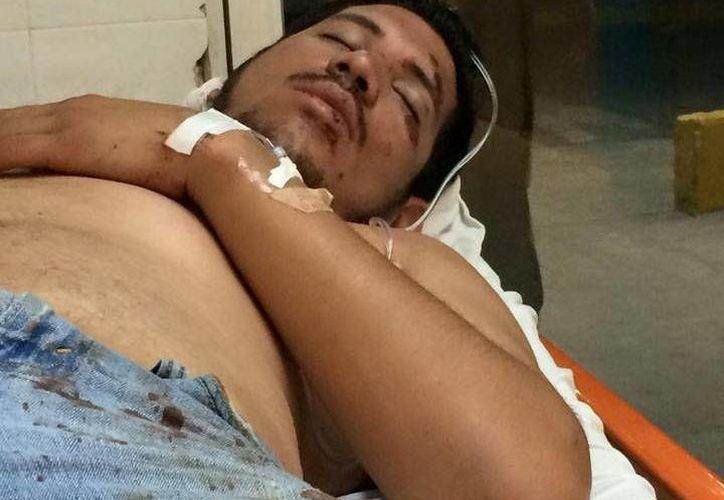 Por la golpiza que le propinaron guardias de seguridad, Alejandro Quero terminó hospitalizado. (SIPSE)
