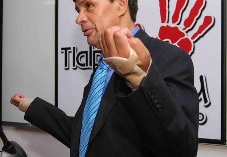 Marco Gabriel Granados, habló en conferencia sobre el transplante de brazos que se le realizó. (Notimex)