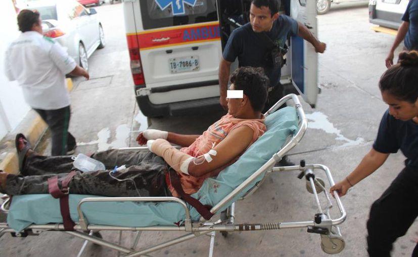 Los responsables cortaron los dedos del sujeto con un cuchillo. (Foto: Redacción)