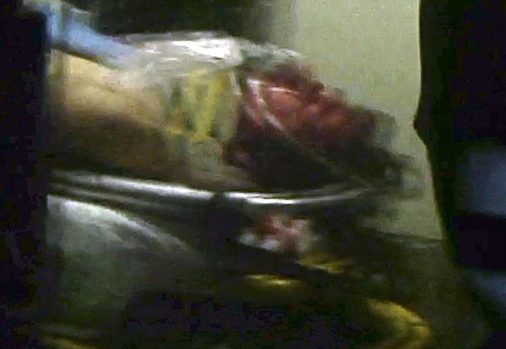 El joven, herido en el cuello y en una pierna, a su llegada al hospital. (Agencias)