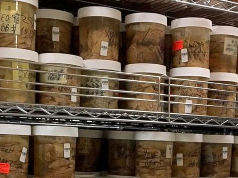 This undated photo shows slices of human brains in the Mount Sinai Brain Bank that researchers are using to study Alzheimer's disease.