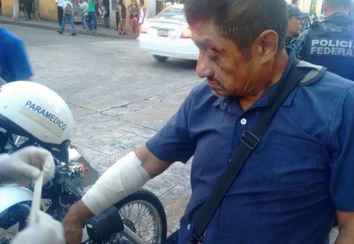 Hernán Moguel fue atropellado en la calle 62 con 67 del Centro Histórico. (Foto: José Salazar)