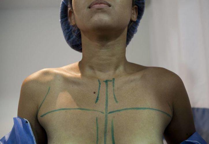 Una paciente es preparada para su aumento de senos en el centro de cirugía ambulatoria metropolitana de Caracas, Venezuela. (Agencias)