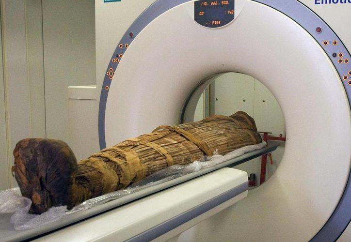 La arterioesclerosis fue encontrada, inclusive, en culturas antiguas que se cree llevaban estilos de vida saludables.  (Agencias)
