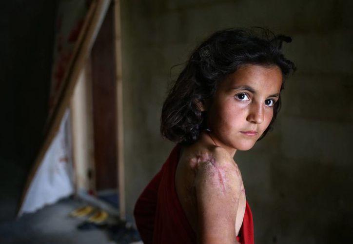Lujain Hourani, de 11 años, quien aparece en un refugio, perdió parte de un hombro durante un ataque del gobierno en la villa de Zara, en Siria. (Foto: AP)