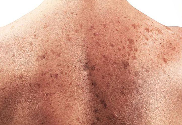 Si sientes picazón o dolor en la piel y son constantes es mejor que consultes a un médico para descartar algo grave. (Foto: Contexto/Internet).