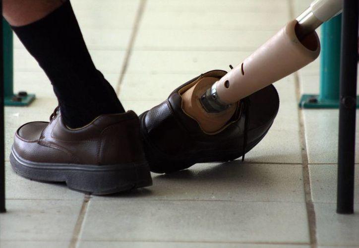 El año pasado la Beneficencia Pública entregó 14 prótesis para rodilla. Esta vez serán 60, además de prótesis para otras partes del cuerpo lo que ayudará a cientos de personas de Yucatán. (SIPSE)